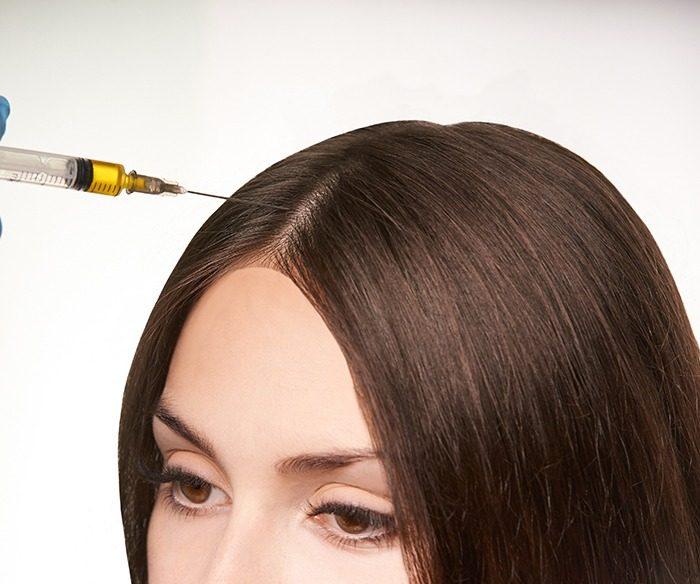 Kmenové buňky – vlasy DermaPen